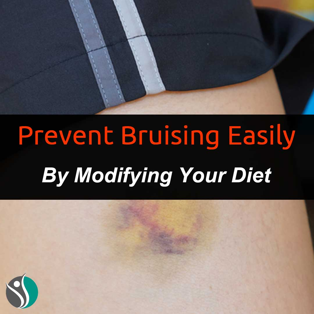 Prevent Bruising Easily By Modifying Your Diet