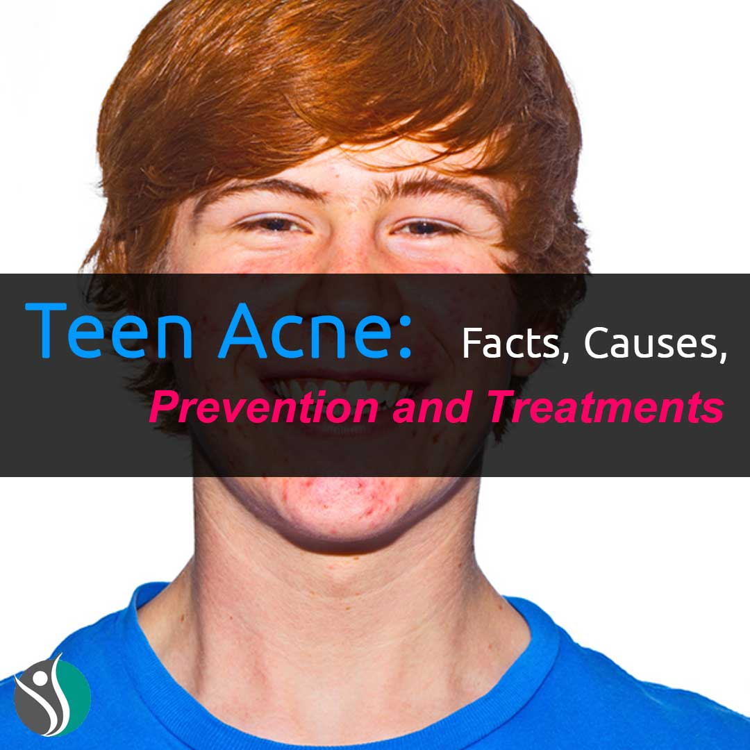 Teen Acne: Facts, Causes, Prevention, and Treatments