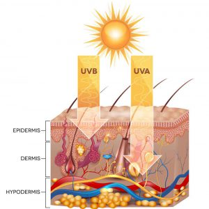 What Causes Sunburn
